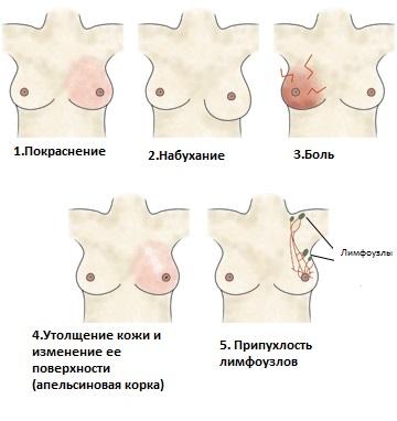 osnovnye-simptomy-mastita