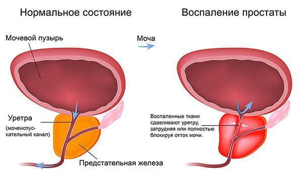 uretrit-lechenie