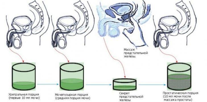 massazh-prostat