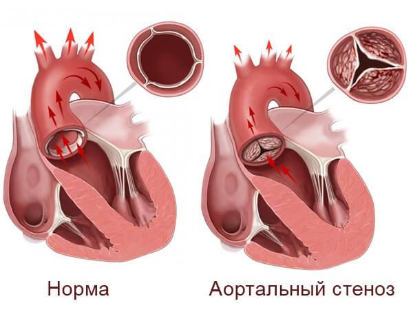 Аортальный стеноз: клапана, устья аорты, сужение, лечение без операции, сердца, симптомы, классификация