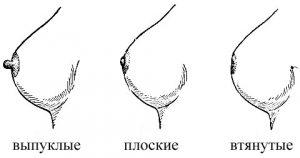 vidy-soskov