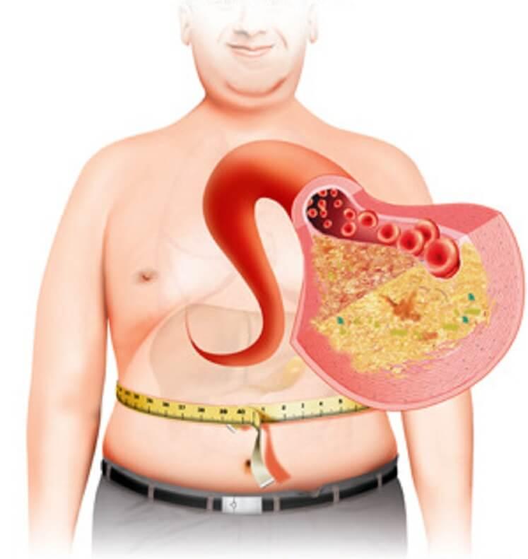 Метаболическая терапия 8-846-990-54-31, 200-17-72