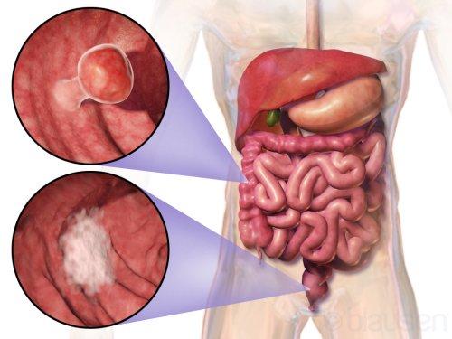 Лечение распространенного колоректального рака