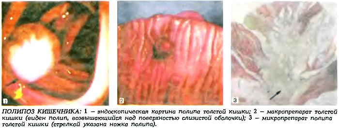 Polipoz-kishechnika
