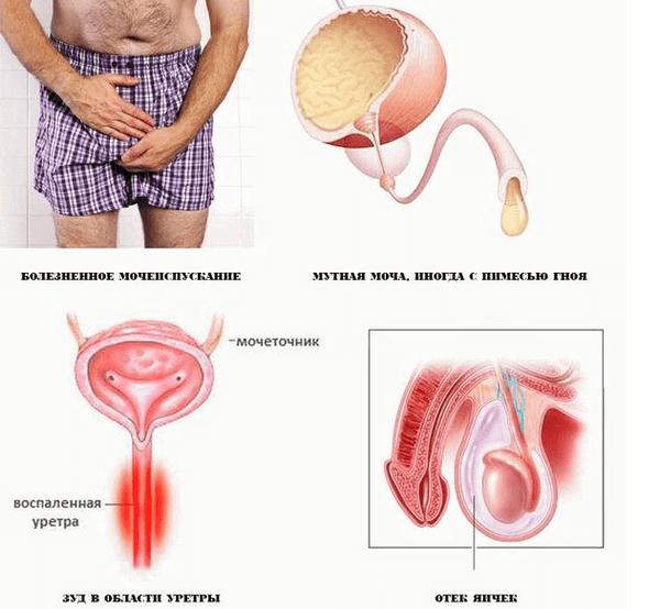 hlamidioz-u-muzhchin-simptom