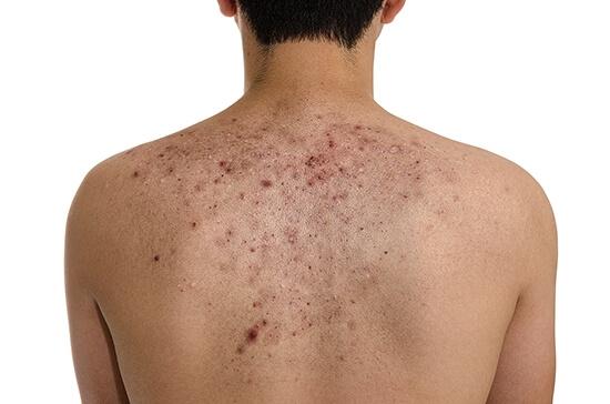 Прыщи на спине и плечах. Почему возникают прыщи на спине и плечах? Лечение и причины прыщей на спине и плечах у мужчин и женщин
