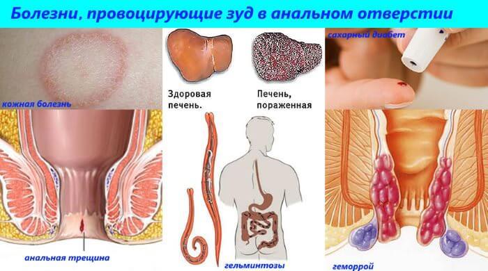 prichiny-zuda-v-oblasti-analnogo-otverstiya1 (1)