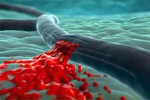 Геморрагический инсульт головного мозга - прогнозы, лечение и последствия, видео