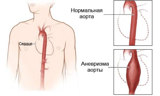 Shema-rassloenija-aorty