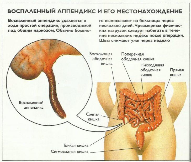 appendizit