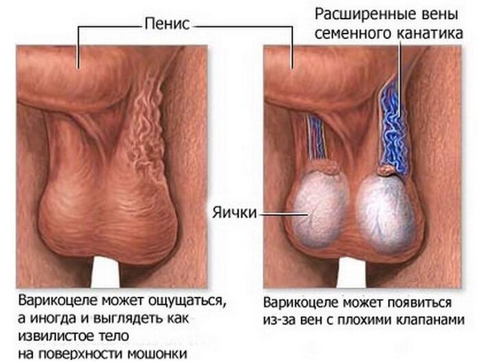 posledstviya-opasnost (1)