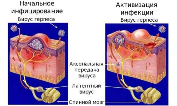 ecept-lechenie-prostatit