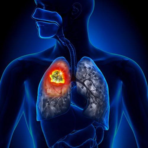 Тромбоэмболия легочной артерии и инфаркт легкого