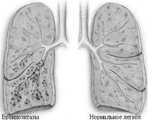 bronhoektazi