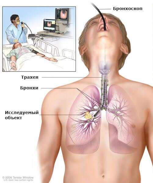 bronhoskopia