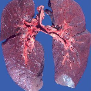 pulmonary_hemosiderosis
