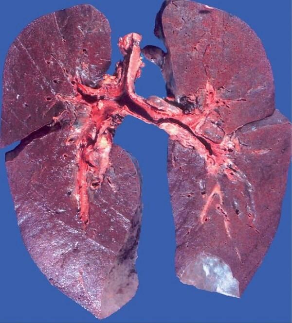 Картинки при заболевании легких