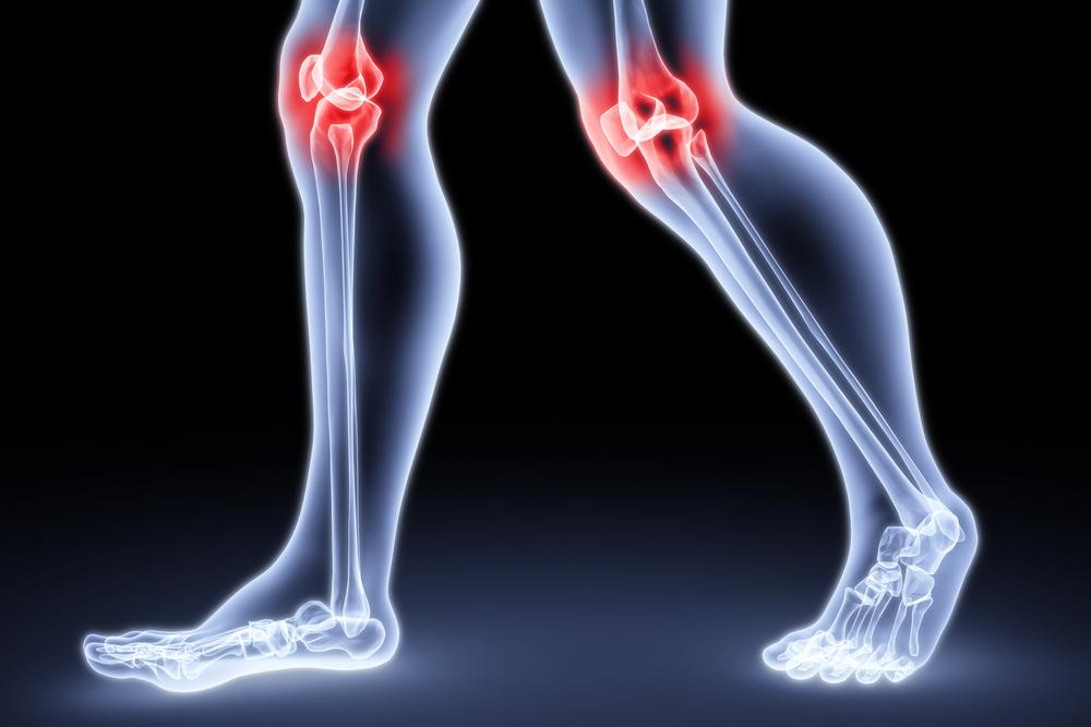 Лечение остеоартроза суставов