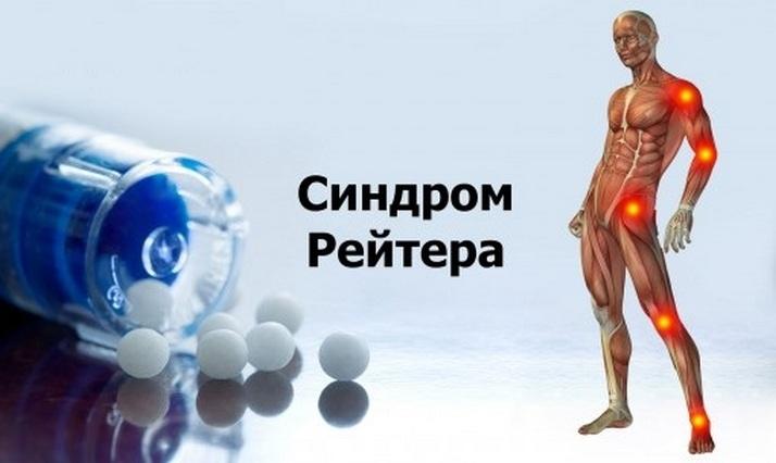 Болезнь Рейтера симптомы у женщин и мужчин лечение