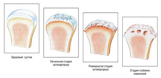 Изображение - Остеоартроз суставов нижних конечностей zdor1