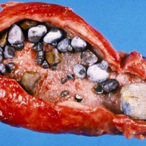 Камень в протоке поджелудочной железы
