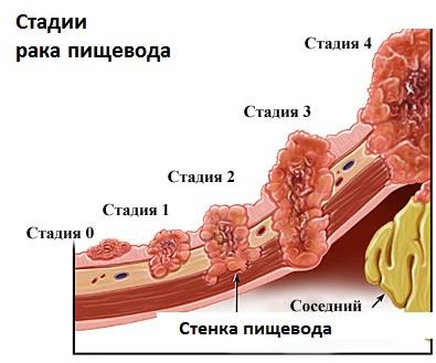 rak gorla