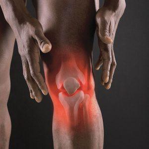Изображение - Разрыв коленного сустава 3 степени 2153-300x300