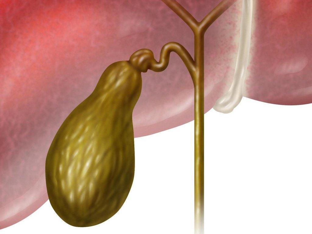 Киста в желчном пузыре и ее лечение у взрослых
