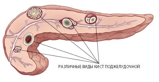 Кальцемины в поджелудочной железе