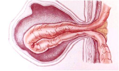 Бедренная грыжа у мужчин симптомы лечение. Бедренная грыжа у мужчин симптомы фото. Прогноз и профилактические мероприятия