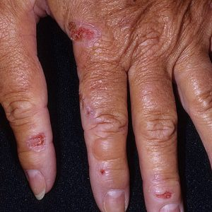 Порфирия – что это за болезнь? Поздняя кожная, острая перемежающаяся порфирия