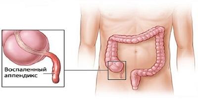 Лечение при перфорации желудка