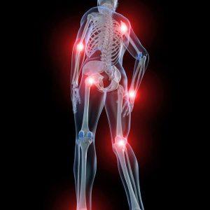 Изображение - Частое воспаление суставов 1-528-300x300