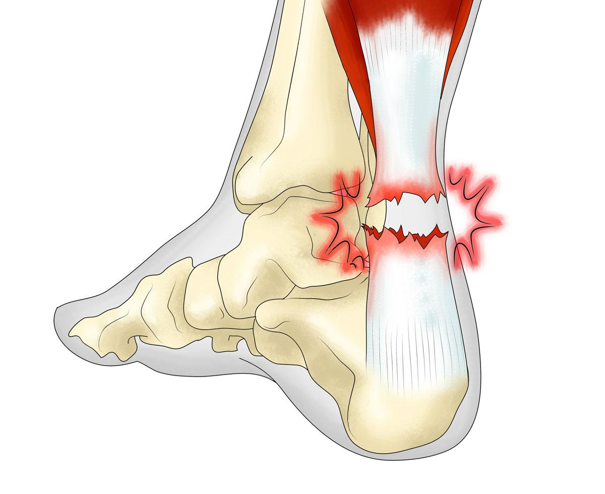 Разрыв ахиллова сухожилия на ноге