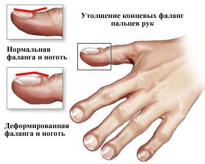 Изображение - Частое воспаление суставов Clubbing_of_the_fingers