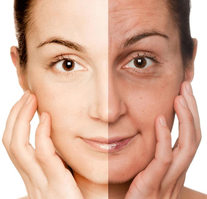 Что такое фотостарение кожи, признаки