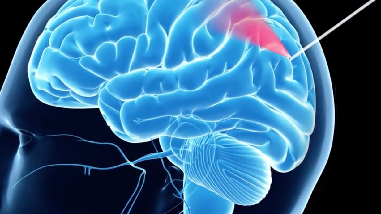 Биопсия опухоли головного мозга