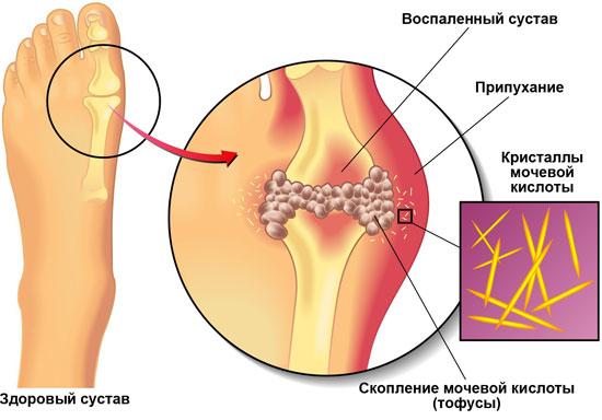 Изображение - Частое воспаление суставов chto-takoe-podagra