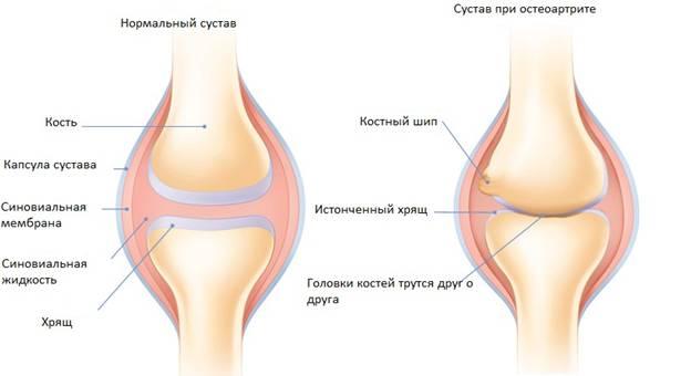 Изображение - Частое воспаление суставов sustavy2