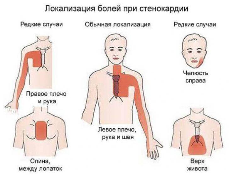 Какое лекарство принимать при болях в сердце
