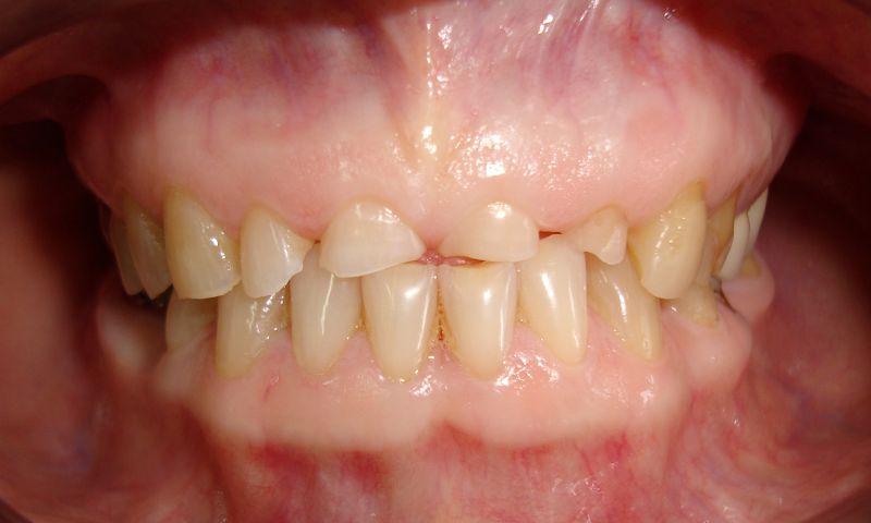 Что такое стираемость зубов