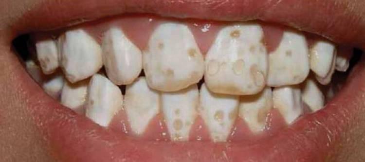 Аплазия эмали молочных зубов