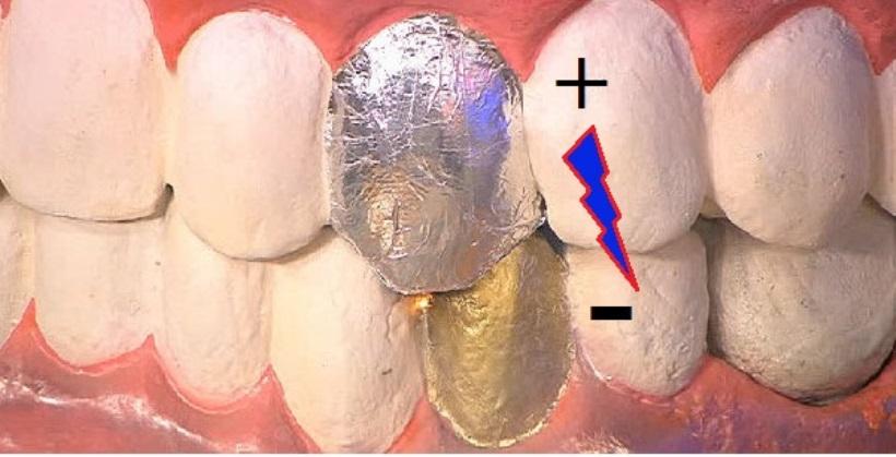 Гальваноз полости рта - причины, лечение и профилактика!