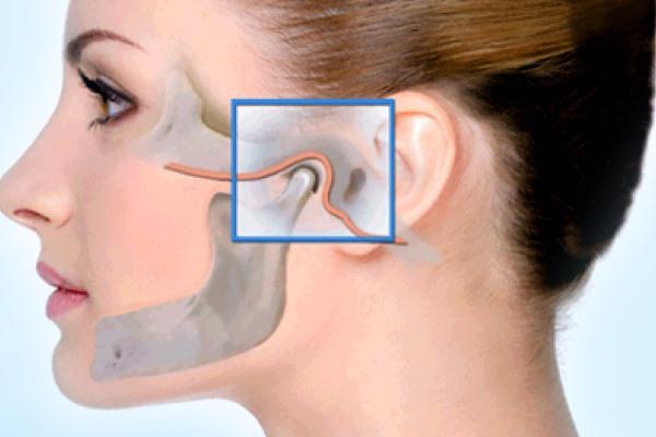 Лечение артроза и артрита челюсти фото