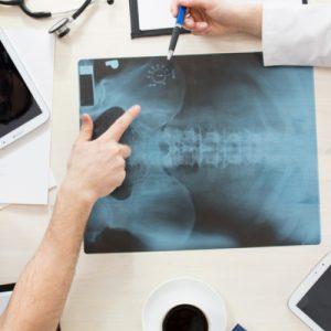Перелом тазобедренной кости симптомы лечение и последствия
