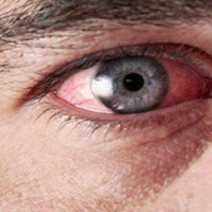 Что делать если болят глаза после сварки