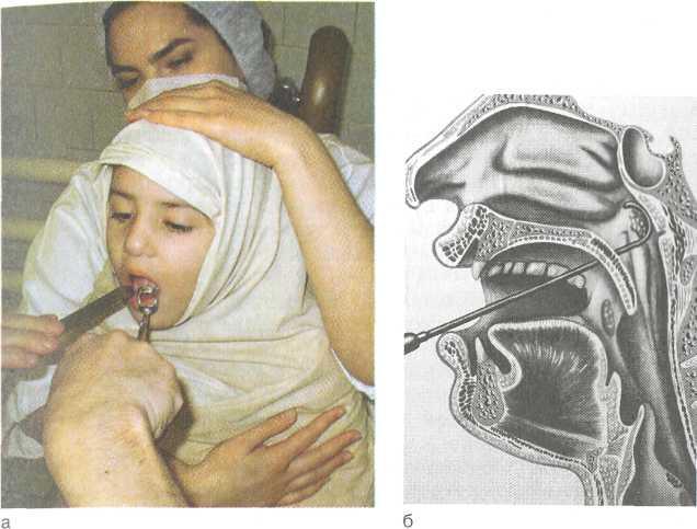 Диета После Аденотонзиллотомии. Что можно кушать после удаления аденоидов и миндалин у детей