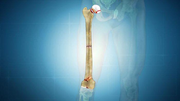 Что такое патологический перелом кости