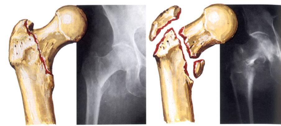 Перелом бедра бедренной кости первая помощь лечение реабилитация