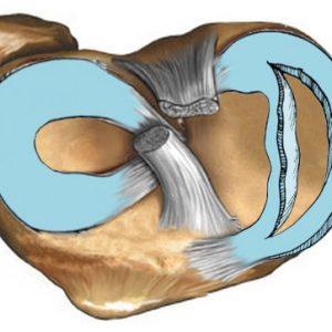 Разрыв мениска коленного сустава последствия